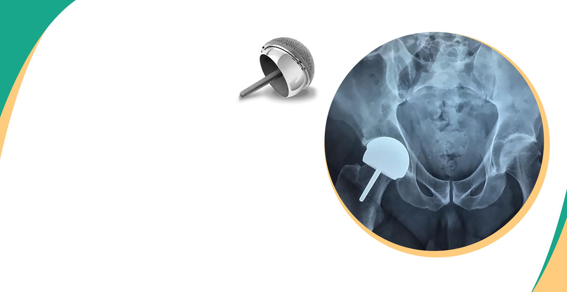 Conheça mais sobre<br /> a prótese de Resurface<br />